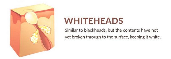 Whiteheads develop when dead skin cells, sebum (oil), and dirt clog your pores. Unlike blackheads, which can be pushed out, whiteheads are closed within the pore
