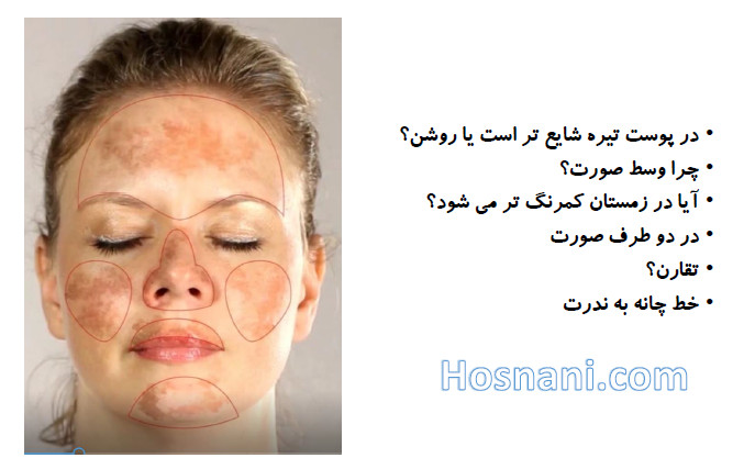 melasma dark skin middle of face winter symmetry chin line